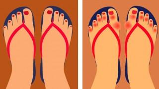 Οι Γιατροί προειδοποιούν: ΜΗΝ φοράτε Σαγιονάρες! Δείτε 6 Προβλήματα Υγείας που Προκαλούν