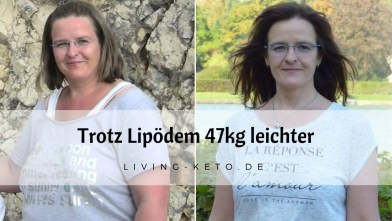 Read more about the article Trotz Lipödem 47 kg leichter
