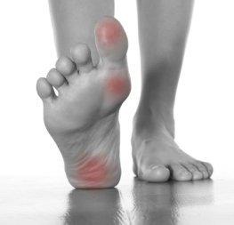 Otro de los puntos gatillo de la fibromialgia que puede agravar el cuerpo fibro a primera hora de la mañana es de alrededor de la fascia en la planta de los pies.