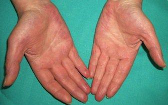 Rheumatoid-arthritis-palm-hand