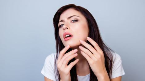 clogged pores on chin