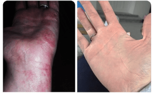 Hand eczema before and after