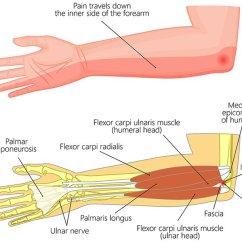 Ulnar Nerve Diagram Kenwood Excelon Dnx8120 Wiring Transposition Lawrence Memorial Hospital Image