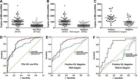 Long non-coding RNA metastasis associated in lung