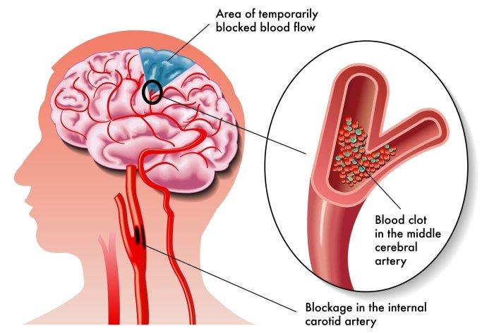 hight resolution of ischemic stroke