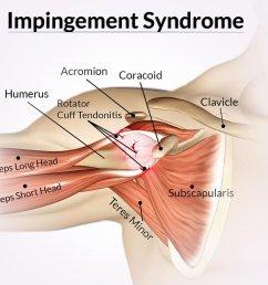 shoulder impingement syndrome [ 1000 x 908 Pixel ]