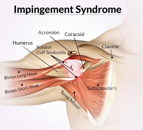 small resolution of shoulder impingement syndrome