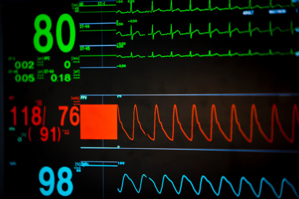 [NEWS] Flaws in hospital anesthesia and respiratory devices allow remote tampering – Loganspace