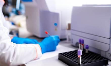 Centrífugas fornecidas pela Roster auxiliam no diagnóstico do novo coronavírus