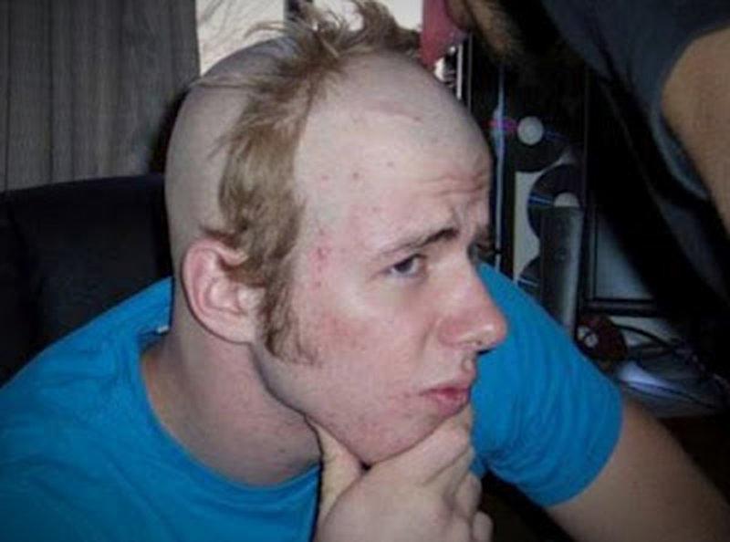 Haarschnitt Der An Einen Mönchkranz Erinnert Lol De