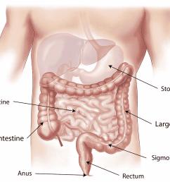 bowel cancer diagram [ 1280 x 993 Pixel ]