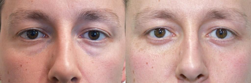Eyelid Surgery FAQ   Blepharoplasty London