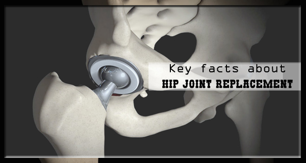 Key Facts about Hip Joint Replacement