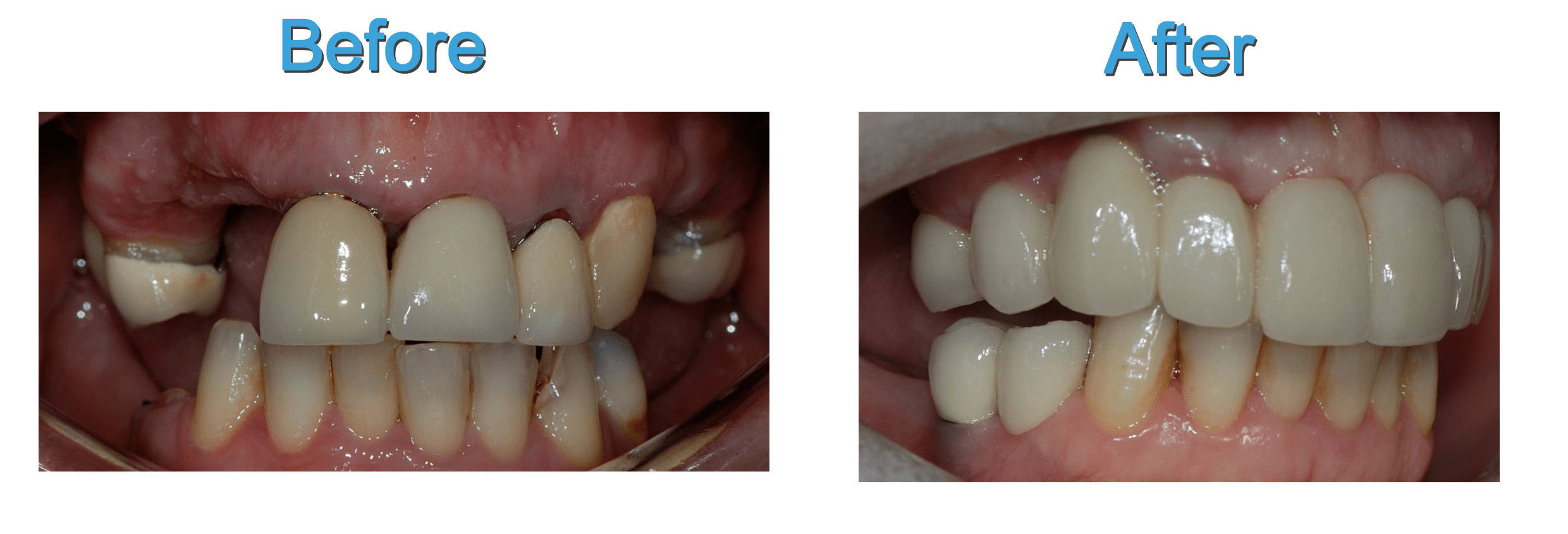 Visit Dental Clinic For Teeth Whitening Or Dental Implants Dental Implants London Dental Implants Cost