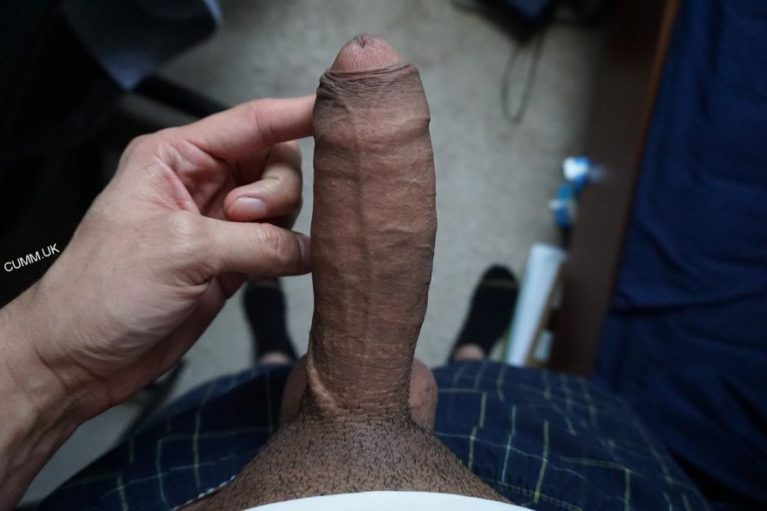 to remove the foreskin