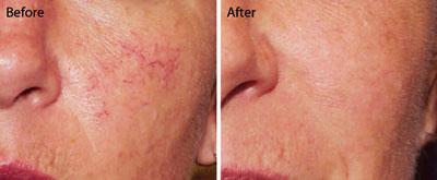 Comprehensive Dermatology of Long Beach | Excel V Laser