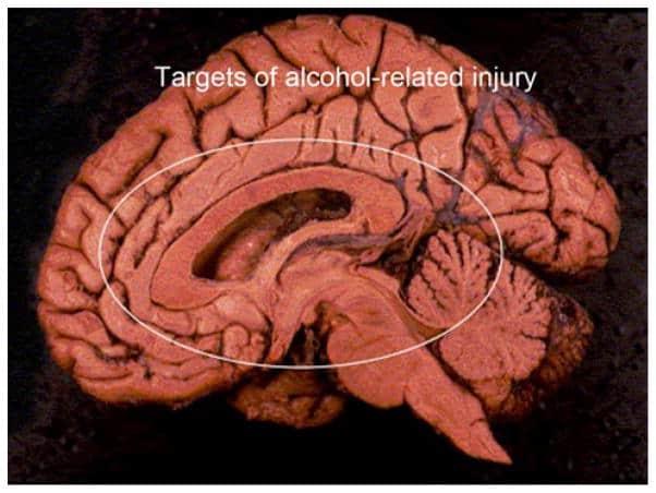 alcohol damage brain hangover