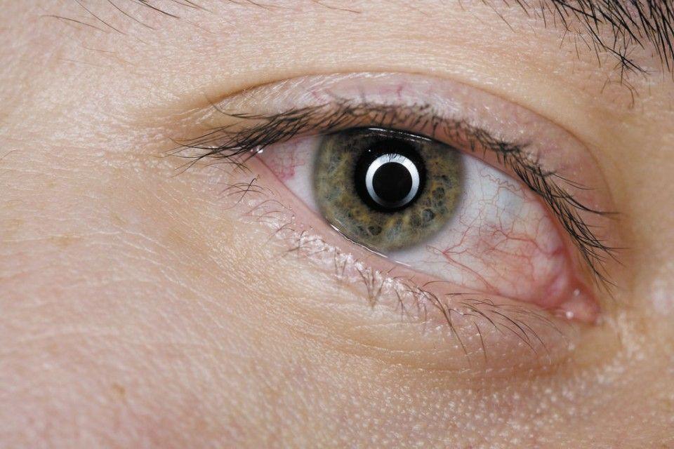 b9d5517925 Los riesgos de usar lentes de contacto