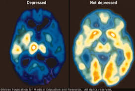 Image shows the dramatic brightness of a brain lit up by ketamine wannabe drug treatment, and the darkness in the depressed brain without it.