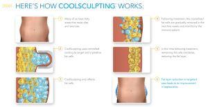 طريقة عمل تقنية النحت البارد CoolSculpting