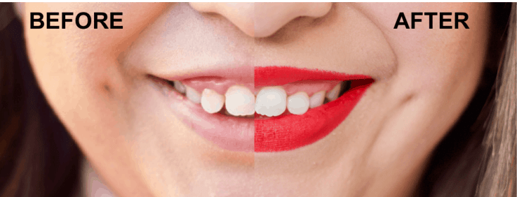 before teeth whitening, after teeth whitening, smile brilliant, how to whiten teeth at home, at home whitening teeth system