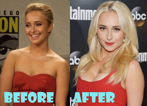 Hayden Panettiere Plastic Surgery Before And After Pictures - Lovely Surgery -5948
