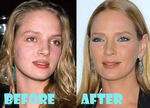 Uma Thurman Plastic Surgery Before And After Picture