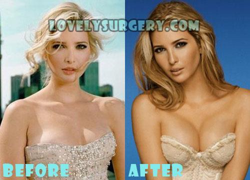 Ivanka Trump Plastic Surgery Boob Job