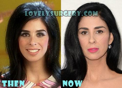 Sarah Silverman Plastic Surgery Botox, Fillers