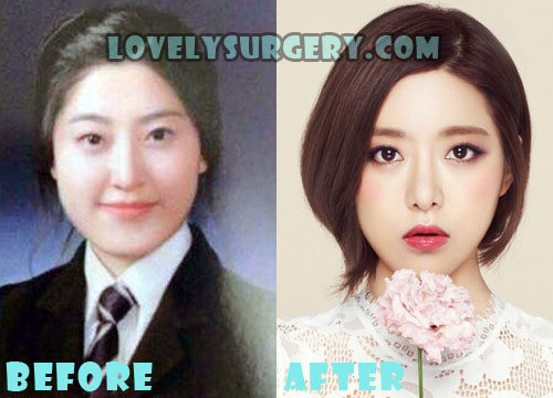 kitchen facelift before and after how to build a bar dj soda plastic surgery rumor - lovely ...