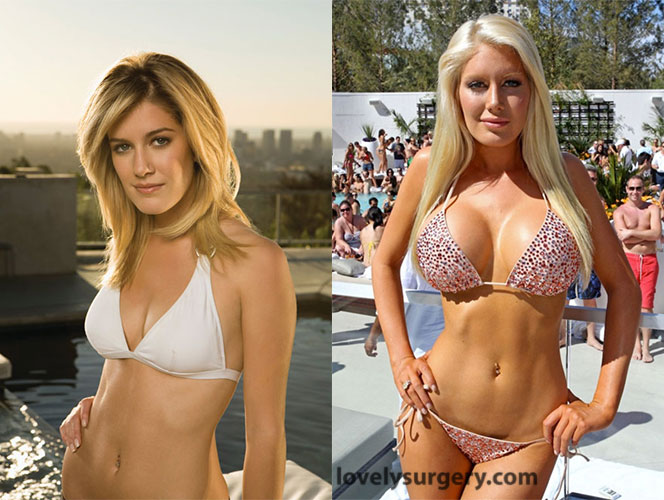 Heidi Montag Breast Operation Before and After