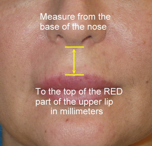20 With The Left Side Of Mole On Lip Celibrity Pictures And Ideas