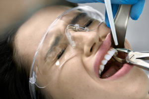Tooth Extraction | General Dentistry | Dental Services Houston