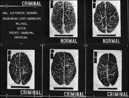 Compulsory sterilisation of criminals (Source: US National Library of Medicine)