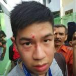 Indonesia: Maltreatment of Alldo Fellix Januardy | Letter