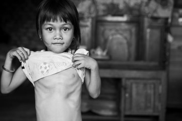 Nguyen Ngoc Nu, an 8-year old child just days away from receiving her lifesaving heart surgery through East Meets West Foundation's Operation Healthy Heart. Vietnam. 2007