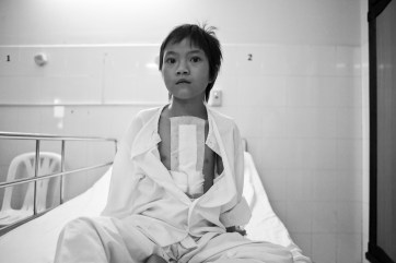 Le Hong Thuy, 9 years old, ponders her future after receiving successful open-heart surgery through East Meets West Foundation's Operation Healthy Heart program. Ho Chi Minh City. Vietnam. 2007