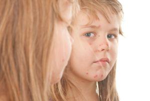 vacuna.varicela