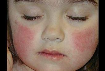 enfermedad-del-bofeton-o-megaloeritema-T-OVdbHD