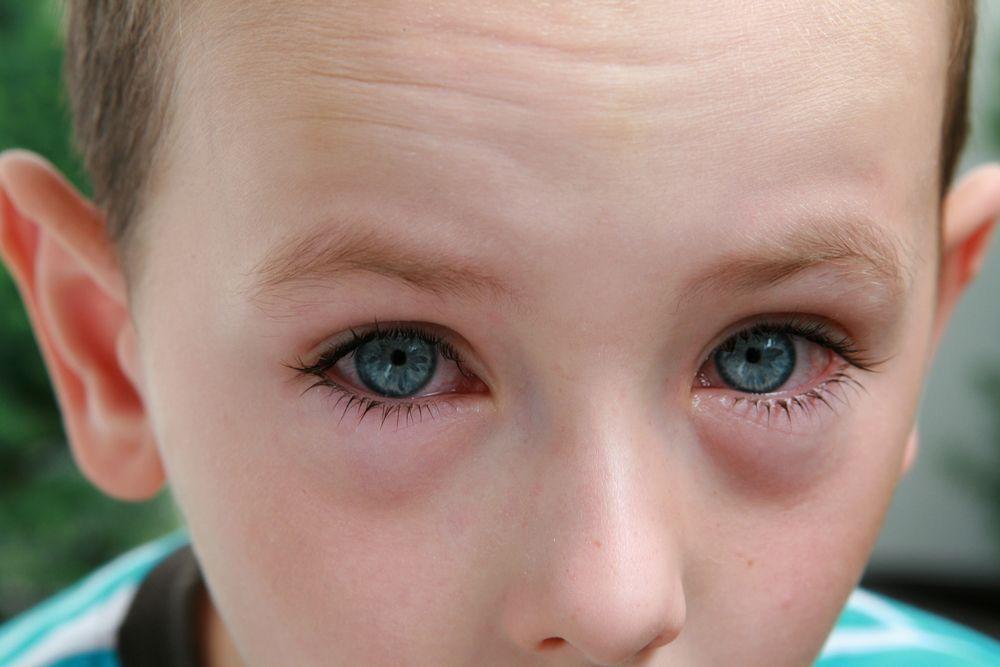 Conjuntivitis en los niños.