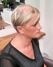 managing female hair loss - lucinda