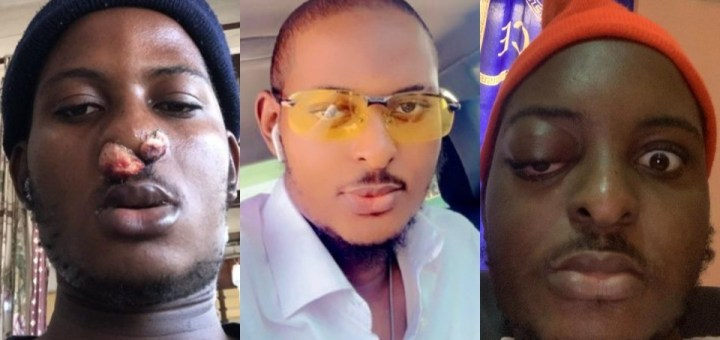 Nigerian music producer Fayabeats beats three types of cancers in one year