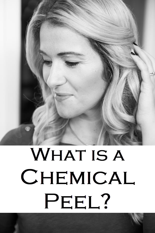 What is a Chemical Peel? Wondering what to Expect after Chemical Peel? Here is what to do before a chemical peel and what skincare to use after a peel. Answering question like can you wear makeup after a peel and how often should you get peels. #skincare