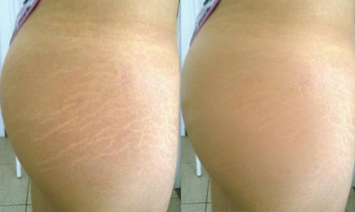 before and after stretch marks
