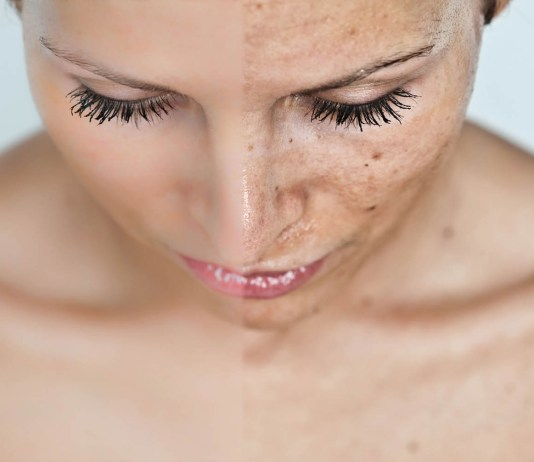 hyperpigmentation and hyaluronic acid