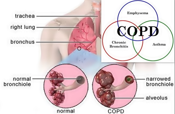 copd-graphic-1