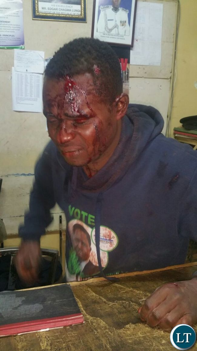 PF cadre Kasosa Mukuka who was beaten up by UPND cadres  after he attempted to stop them from defacing PF posters