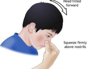 Nosebleed pic
