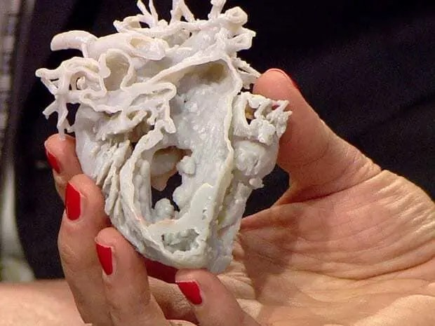 Uso da impressão 3D para a Medicina