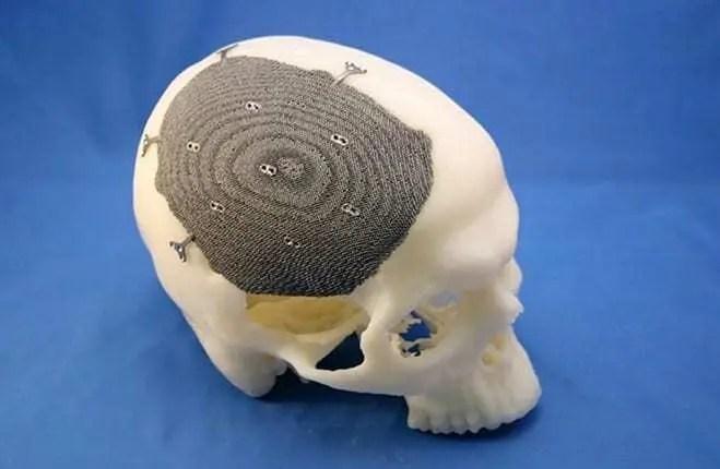 Impressão 3D de biomodelos salvando vidas humanas 3